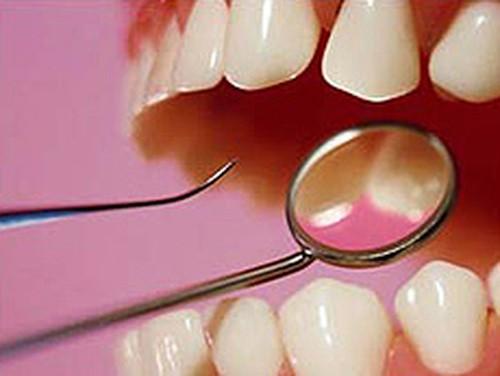 Для предупреждения болезней зубов нужно просто полоскать