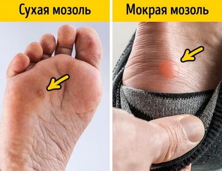 Как быстро вылечить мозоль от тесной обуви?
