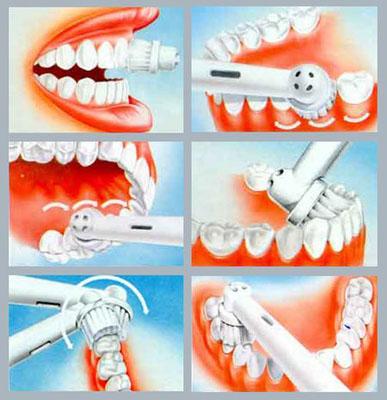 Чистить зубы нужно по правилам!