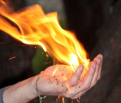 Как лечить ожоги?