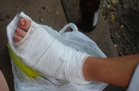 Как легко сломать ногу в домашних условиях