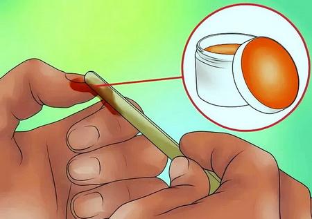 Как правильно вытащить занозу из-под ногтя?