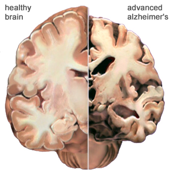 Как Ганодерма (Ganoderma) способна повлиять на ваше здоровье