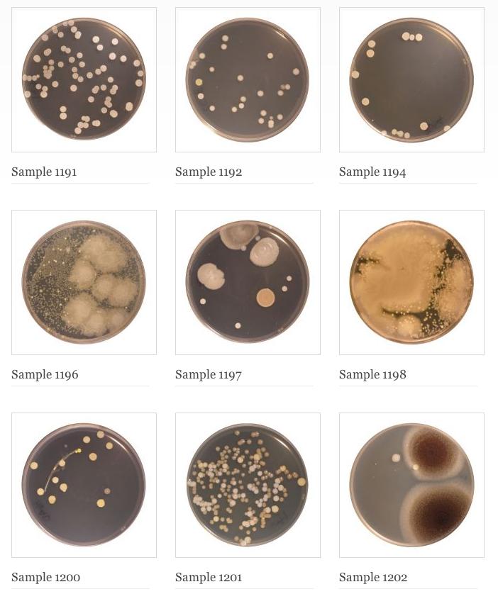 полезные бактерии в пупке Belly Button Diversity Project