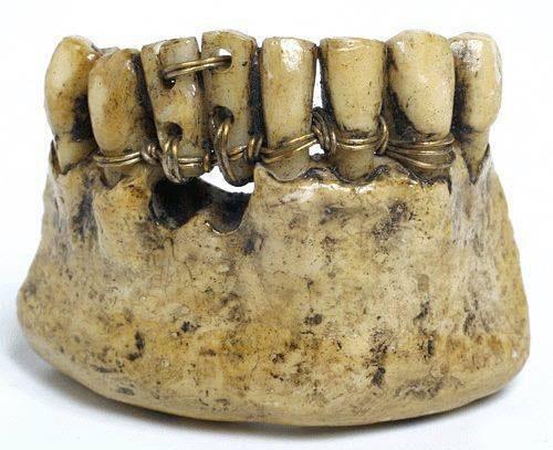 древнеегипетские зубные протезы