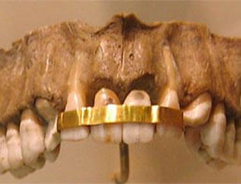 древнеримские зубные протезы
