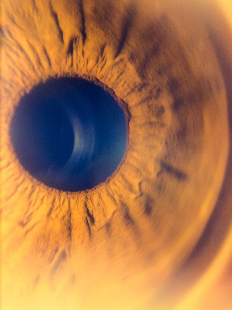 Сделать микроскоп из камеры смартфона и получать потрясающие макроснимки: тестовые снимки с линзой - глаз