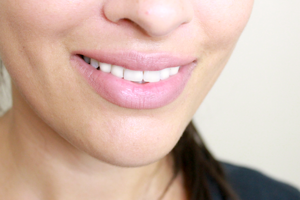 отбеленные зубы - результат чистки активированным углем