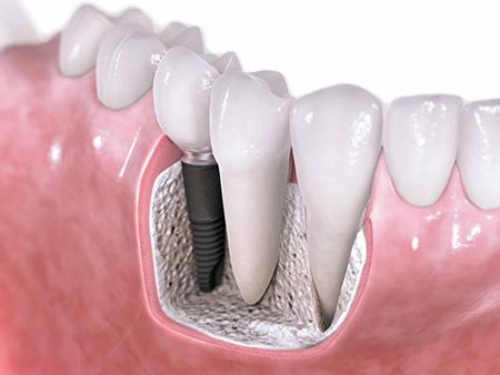 Как справиться с проблемами зубов: протезирование зубов в стоматологии