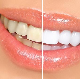 Как отбеливать зубы при помощи банановой кожуры