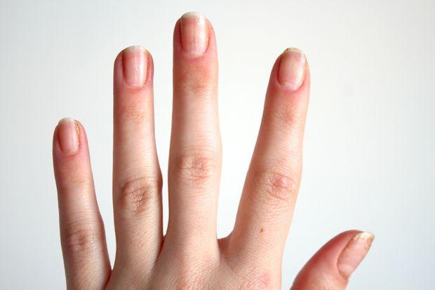 этот метод снял почти весь лак с блестками с ногтей