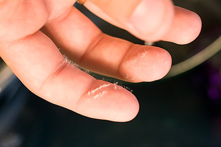 Если заноза(ы) тонкая(кие) и в принципе большей частью находятся на поверхности, лучше вообще не давить на них, а просто приложить ленту.