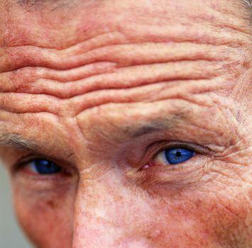 Повторяющиеся выражения лица, вроде лицевых упражнений, так же ускоряют старение кожи