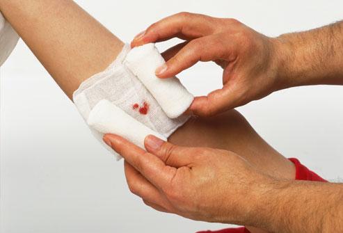 Как правильно лечить порезы и ссадины