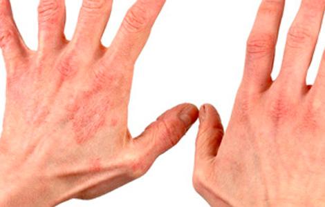 Раздражение в интимной зоне как лечить в домашних условиях