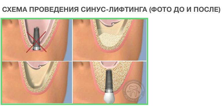 Как проводится процедура синус-лифтинг