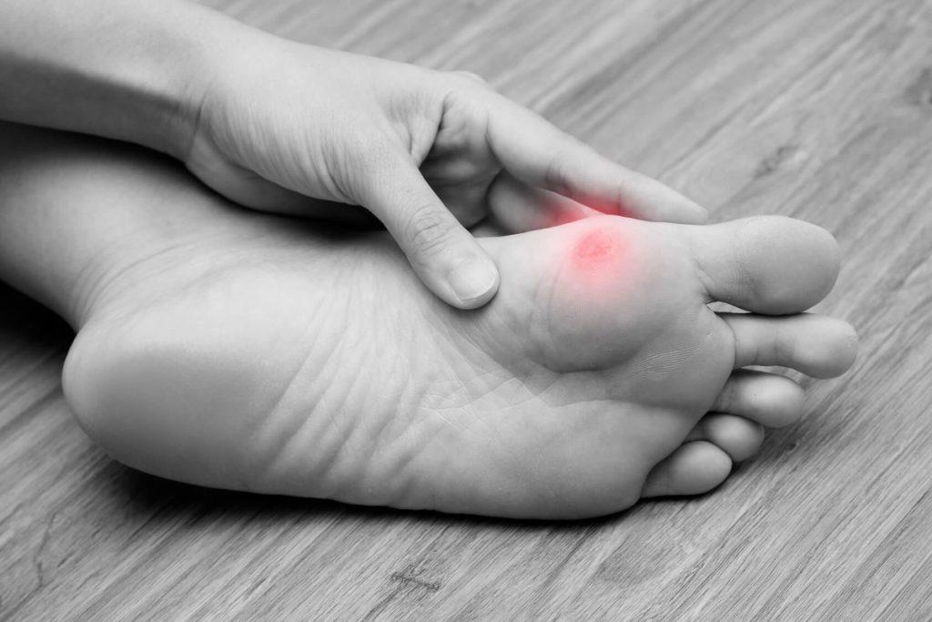Как лечить мозоли на ногах: причины, опасность проблемы и ее устранение